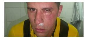 Así terminó el partido Jorge Mendoza (D10.com.py)