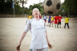 Albino2